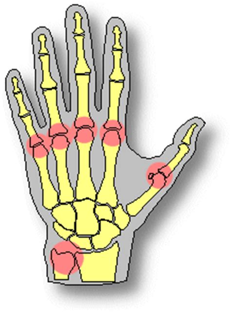 College essay about arthritis